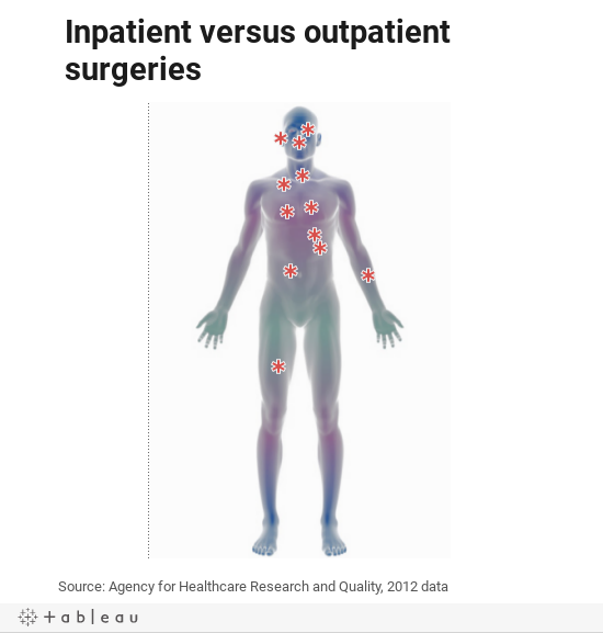 Inpatient versus outpatient surgeries