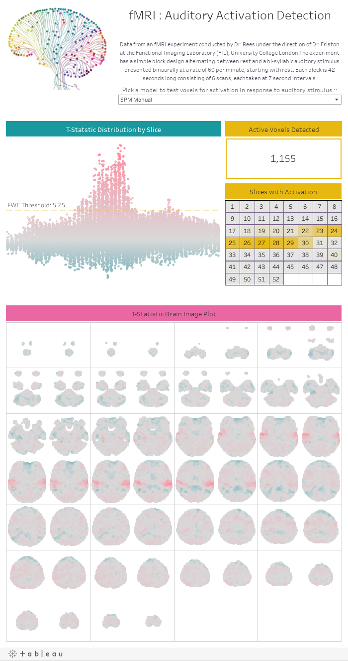 fMRI : Auditory Activation DetectionData from an fMRI experiment conducted by Dr. Rees under the direction of Dr. Friston at the Functional Imaging Laboratory (FIL), University College London.The experiment has a simple block design alternating between